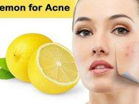 Best Proven Treatments for Stubborn Acnes